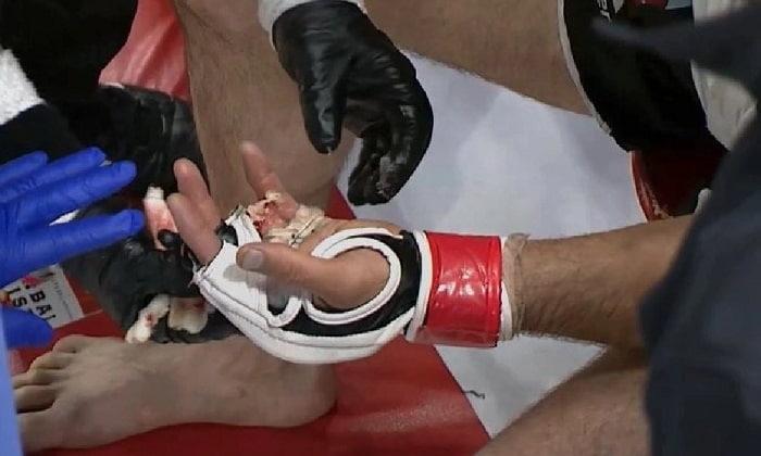 У бойца ММА оторвался палец во время боя